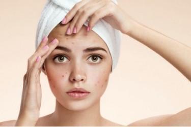 Средства от акне на лице - этапы лечения, рекомендации.